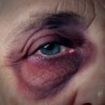 Freiheitsentzug statt Pflege, Gewalt in der Pflege - ein Tabuthema